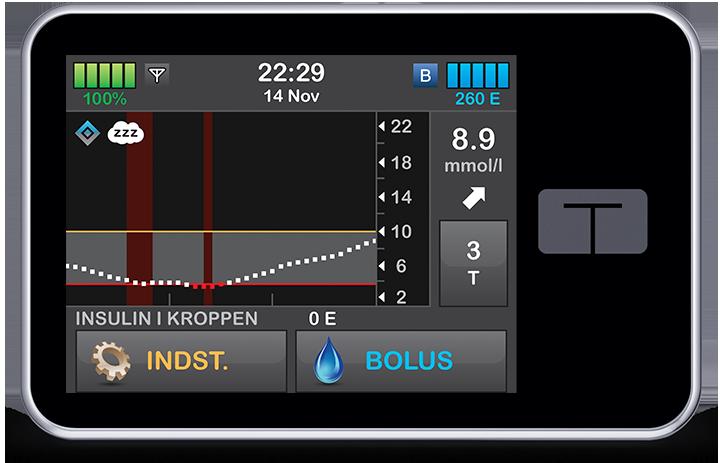 Nye brugere af Tandem t:slim X2 insulinpumpe kan nu få Control-IQ- teknologi