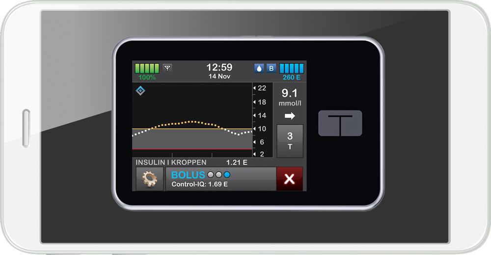Test Control-IQ-teknologi på din mobil!